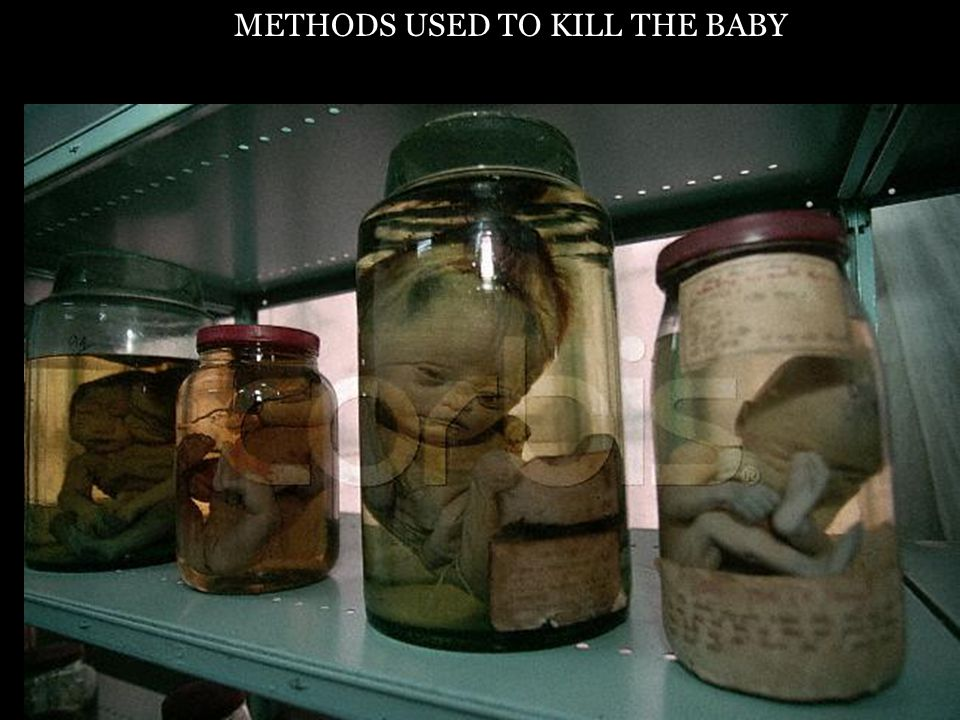 Abortion Babies In A Jar