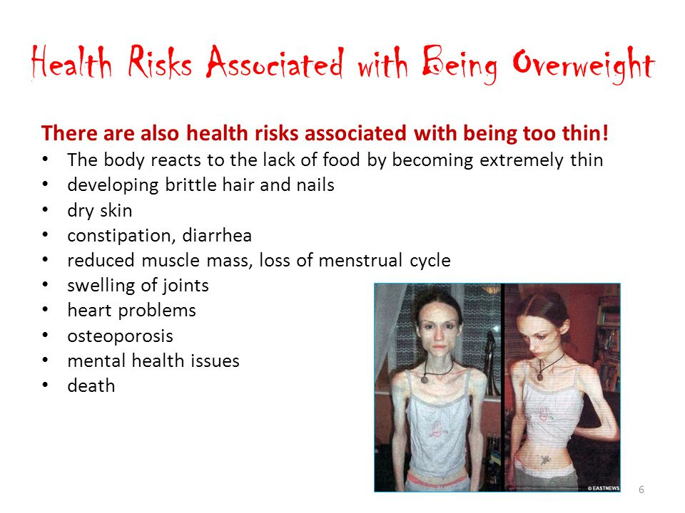 Health Risks Associated with Being Overweight There are also health risks associated with being too thin.