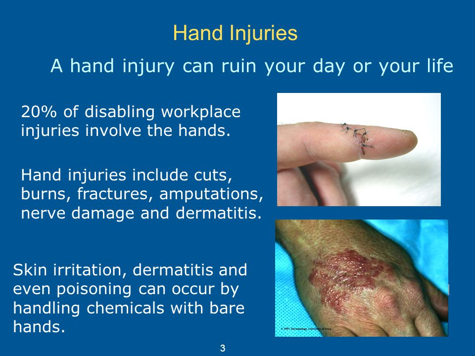 Hand Protection (Gloves) Training on the use of hand
