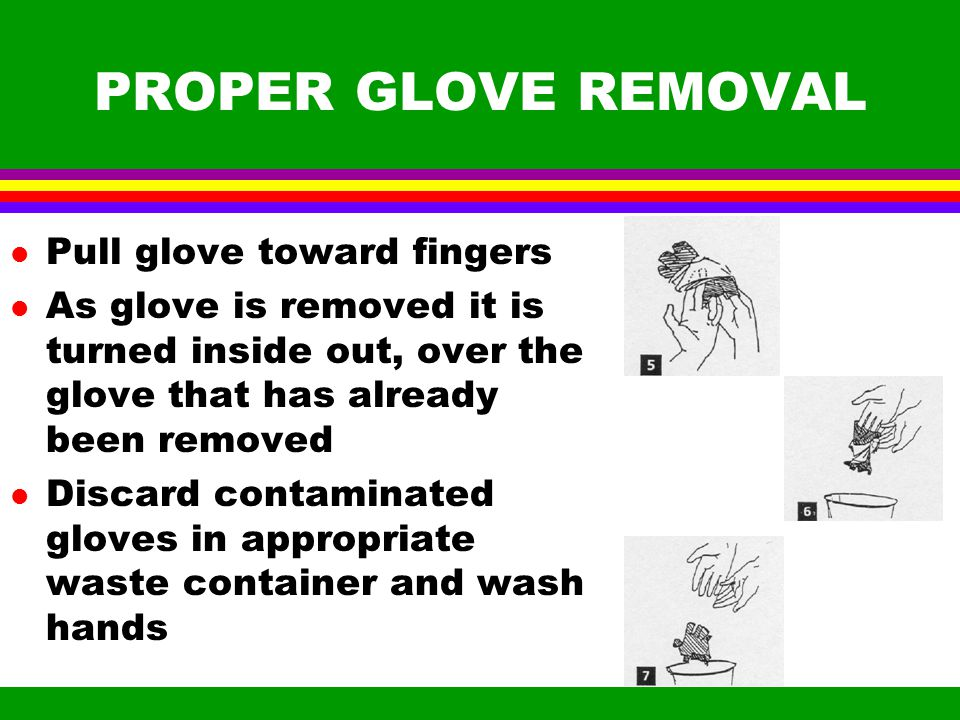 PROPER REMOVAL OF GLOVES l Grasp glove at heel of hand without touching skin l pull glove toward fingers l remove glove from hand l While holding soiled glove, insert index and middle fingers of free hand under other glove at cuff