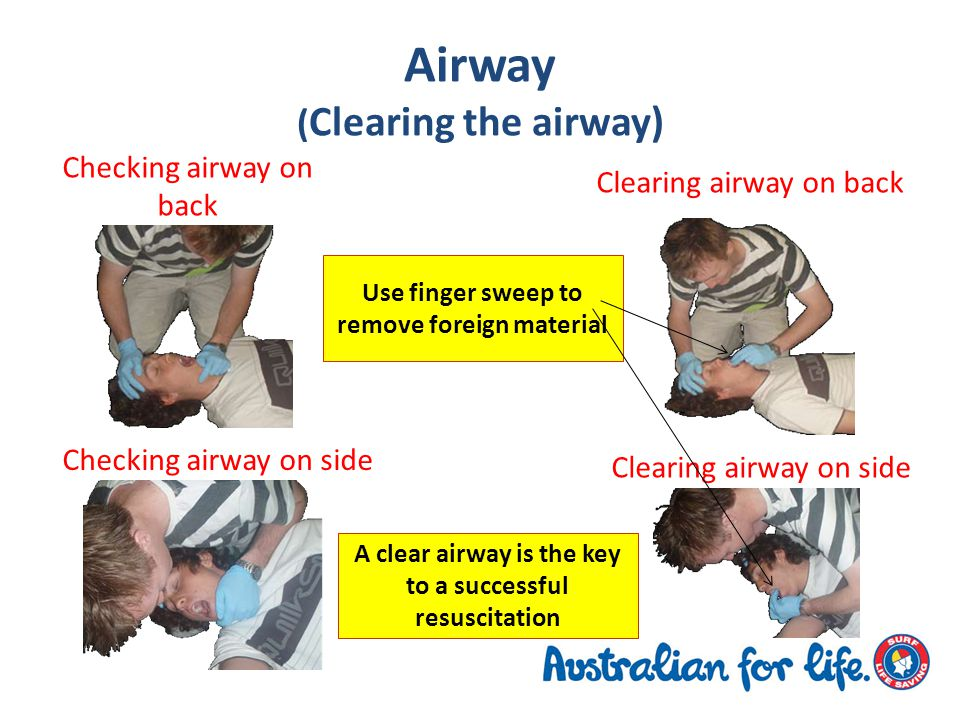 Airway ( Clearing the airway) Use finger sweep to remove foreign material Checking airway on back Checking airway on side Clearing airway on back Clearing airway on side A clear airway is the key to a successful resuscitation