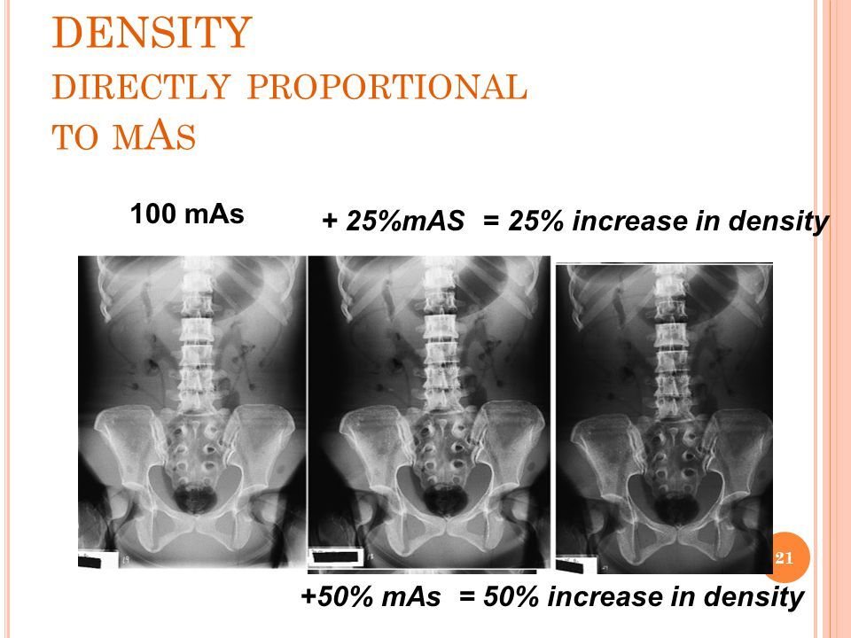 DENSITY DIRECTLY PROPORTIONAL TO M A S + 25%mAS = 25% increase in density 100 mAs +50% mAs = 50% increase in density 21