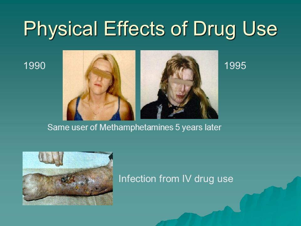 The Downward Spiral: Drug Abuse  Know the Facts About Drugs