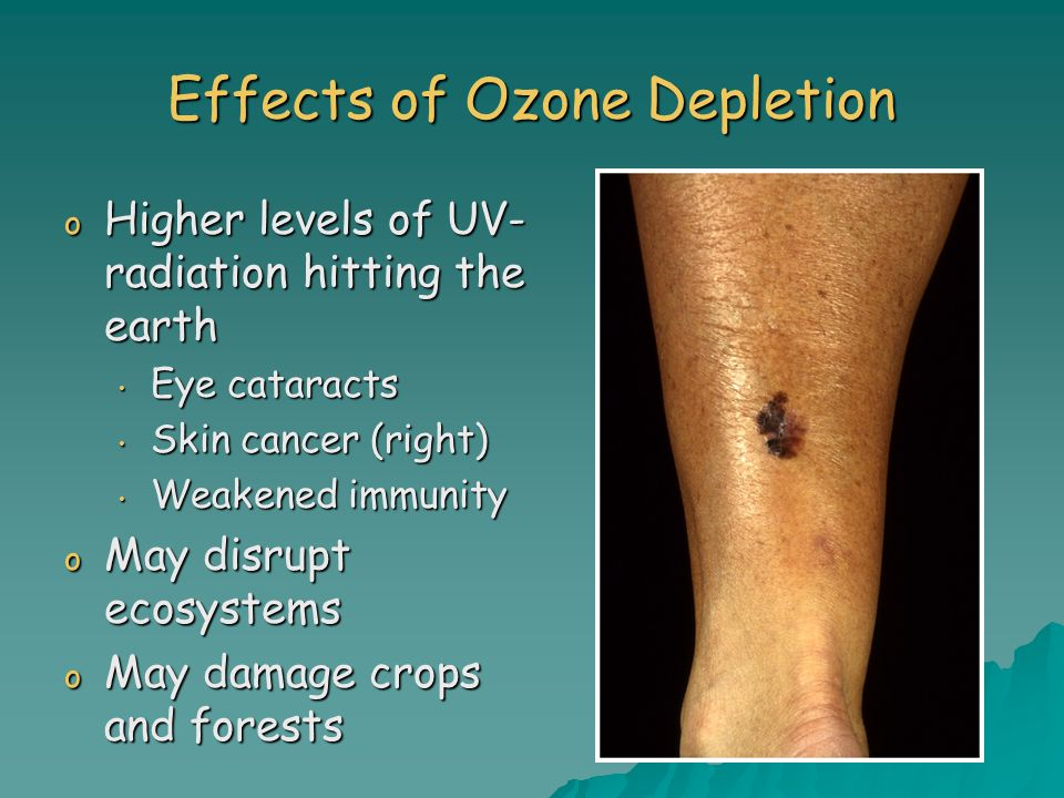 Effects of Ozone Depletion o Higher levels of UV- radiation hitting the earth Eye cataracts Eye cataracts Skin cancer (right) Skin cancer (right) Weakened immunity Weakened immunity o May disrupt ecosystems o May damage crops and forests
