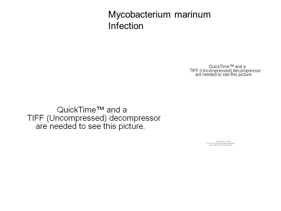 Mycobacterium marinum Infection