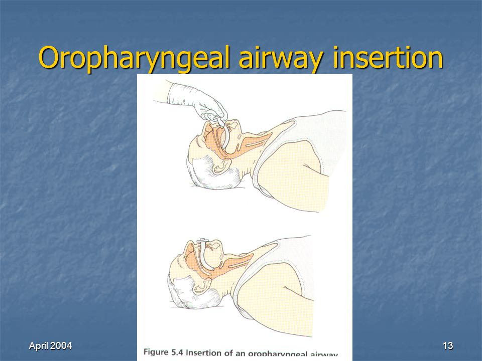 April 2004Richard Lake13 Oropharyngeal airway insertion