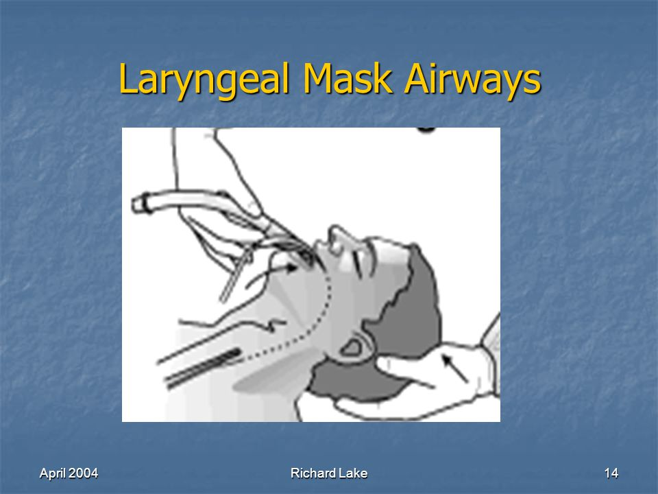 April 2004Richard Lake14 Laryngeal Mask Airways