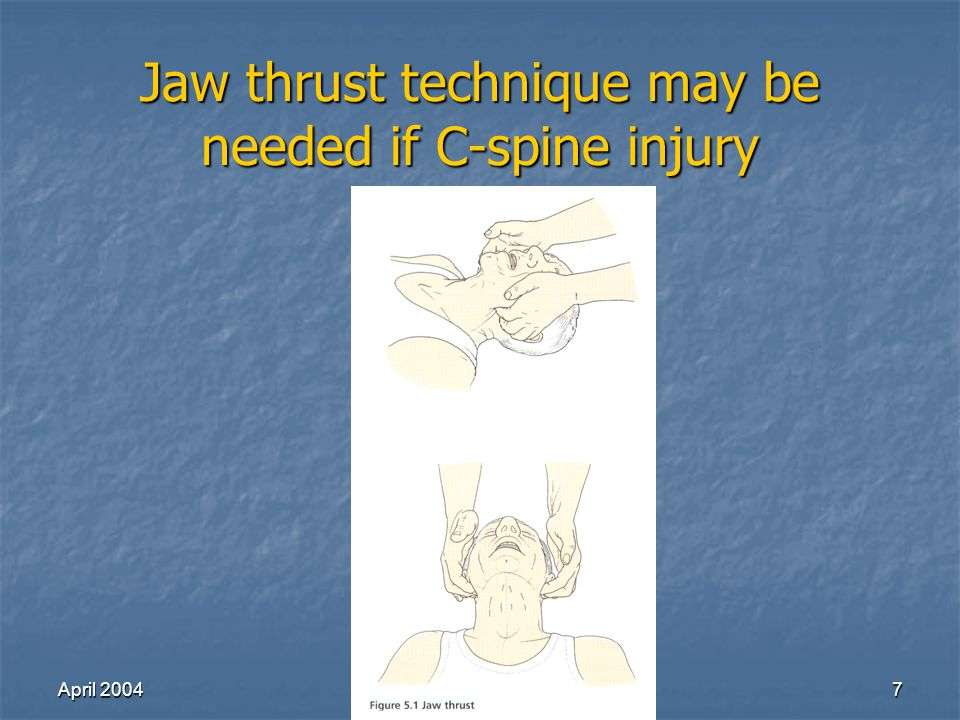 April 2004Richard Lake7 Jaw thrust technique may be needed if C-spine injury