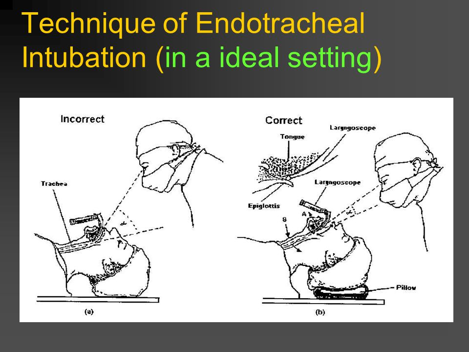Technique of Endotracheal Intubation (in a ideal setting)