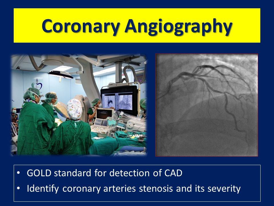 Coronary Angiography GOLD standard for detection of CAD Identify coronary arteries stenosis and its severity
