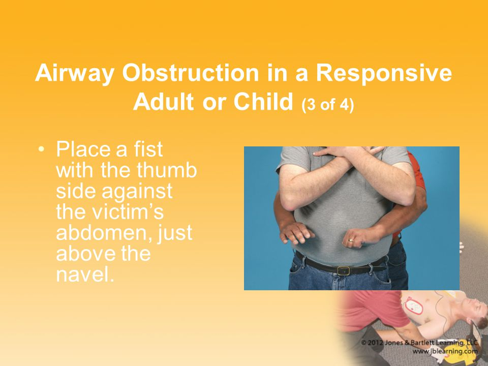 Airway Obstruction in a Responsive Adult or Child (3 of 4) Place a fist with the thumb side against the victim's abdomen, just above the navel.