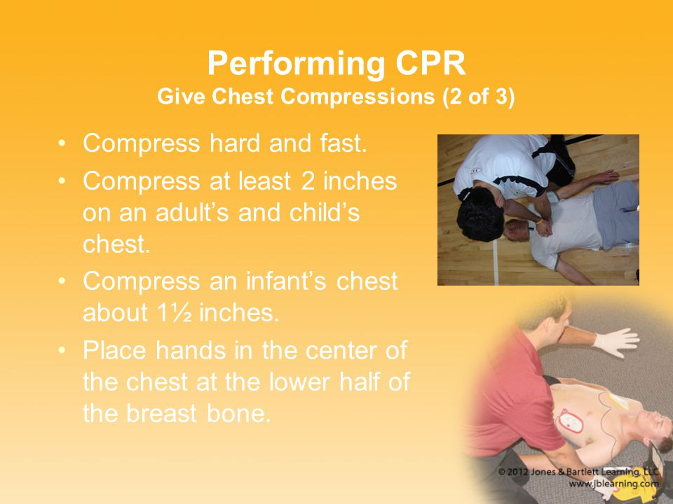 Performing CPR Give Chest Compressions (2 of 3) Compress hard and fast.
