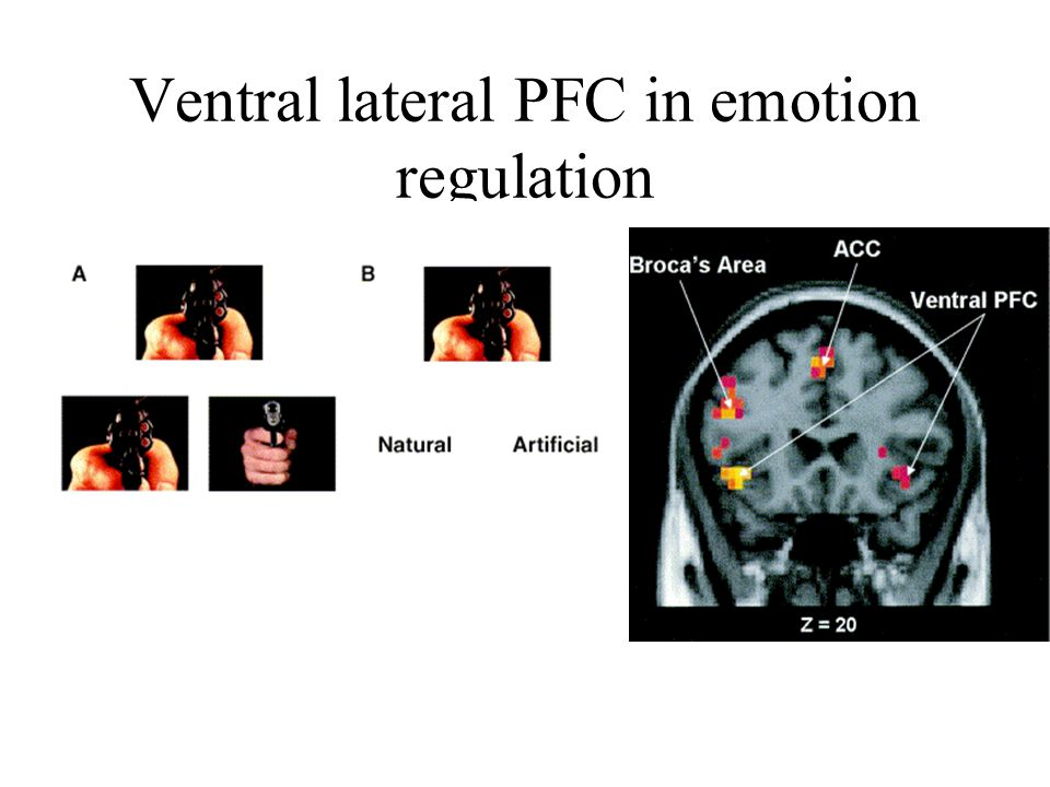 Ventral lateral PFC in emotion regulation