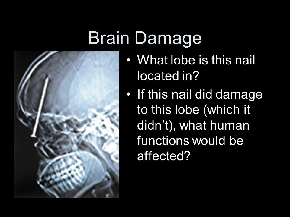 Brain Damage What lobe is this nail located in.