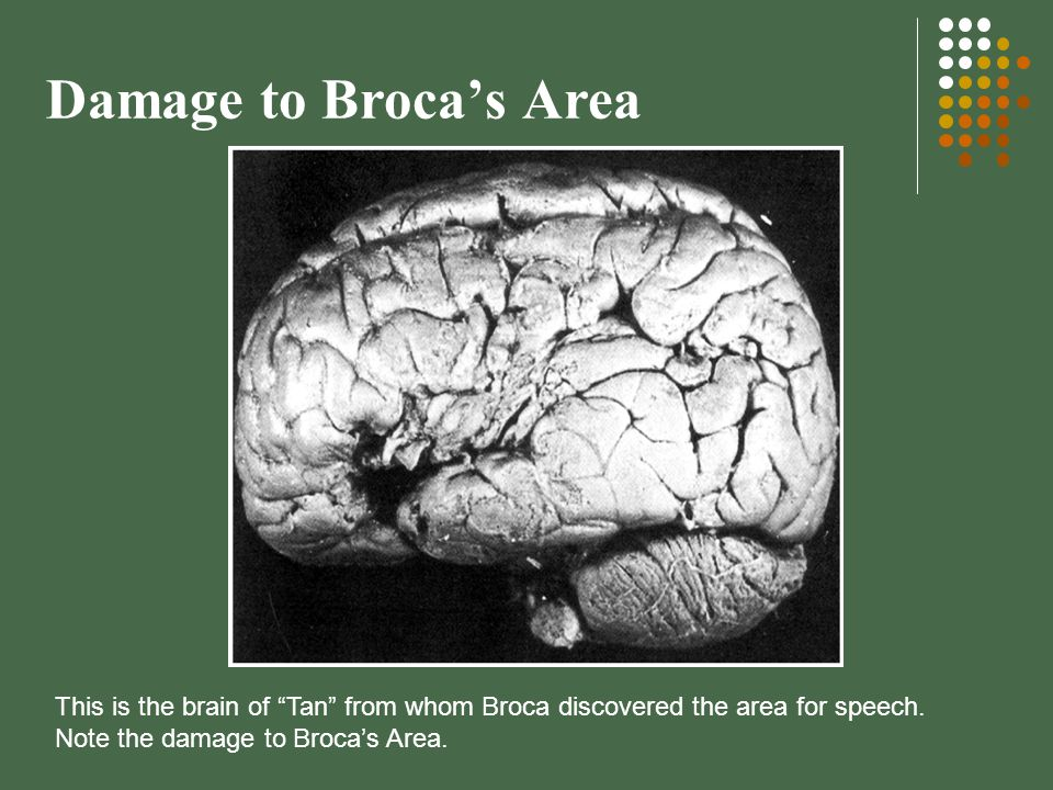Damage to Broca's Area This is the brain of Tan from whom Broca discovered the area for speech.