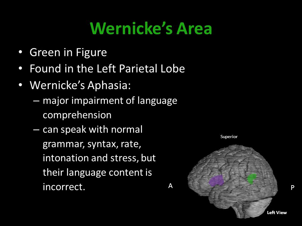 Wernicke's Area Green in Figure Found in the Left Parietal Lobe Wernicke's Aphasia: – major impairment of language comprehension – can speak with normal grammar, syntax, rate, intonation and stress, but their language content is incorrect.