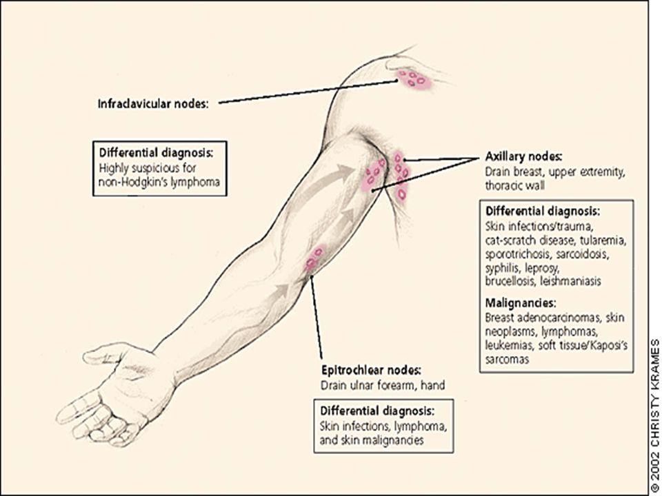 Lymph Nodes Examination Wail Alamoudi Head Neck And Clavicle Ul