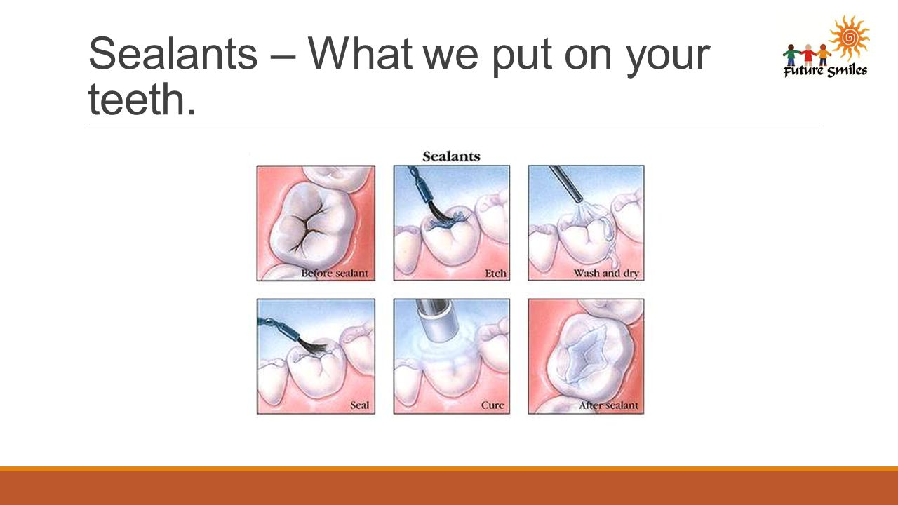 Sealants – What we put on your teeth.