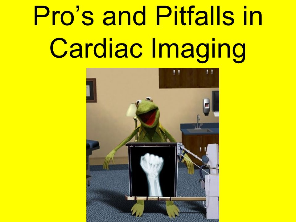Pro's and Pitfalls in Cardiac Imaging
