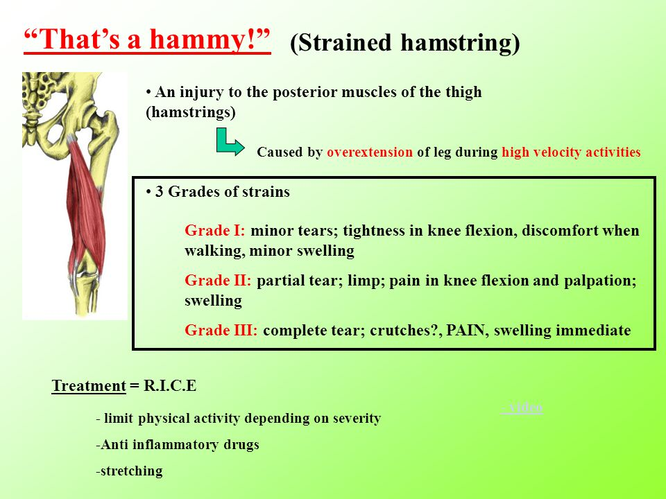 That's a hammy! (Strained hamstring) An injury to the posterior muscles of the thigh (hamstrings) Caused by overextension of leg during high velocity activities 3 Grades of strains Grade I: minor tears; tightness in knee flexion, discomfort when walking, minor swelling Grade II: partial tear; limp; pain in knee flexion and palpation; swelling Grade III: complete tear; crutches , PAIN, swelling immediate Treatment = R.I.C.E - limit physical activity depending on severity -Anti inflammatory drugs -stretching - video