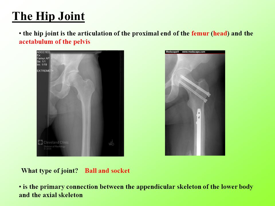 The Hip Joint the hip joint is the articulation of the proximal end of the femur (head) and the acetabulum of the pelvis What type of joint.