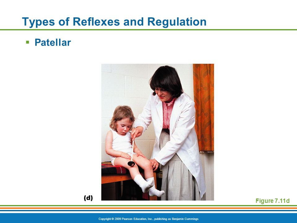 Copyright © 2009 Pearson Education, Inc., publishing as Benjamin Cummings Types of Reflexes and Regulation  Patellar Figure 7.11d