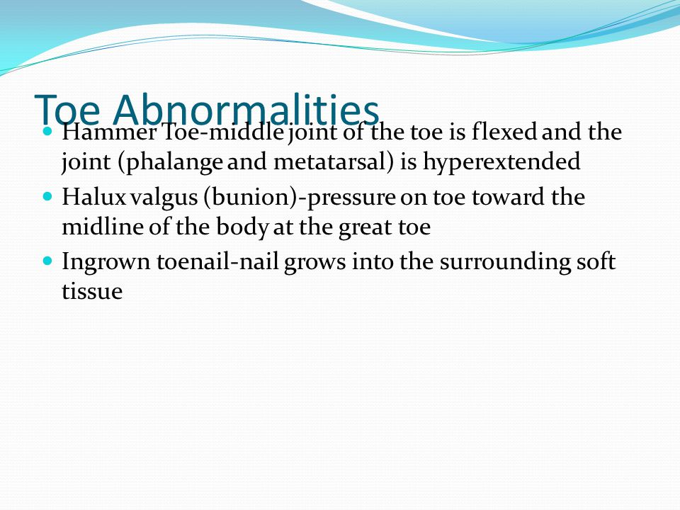 Toe Abnormalities Hammer Toe-middle joint of the toe is flexed and the joint (phalange and metatarsal) is hyperextended Halux valgus (bunion)-pressure on toe toward the midline of the body at the great toe Ingrown toenail-nail grows into the surrounding soft tissue