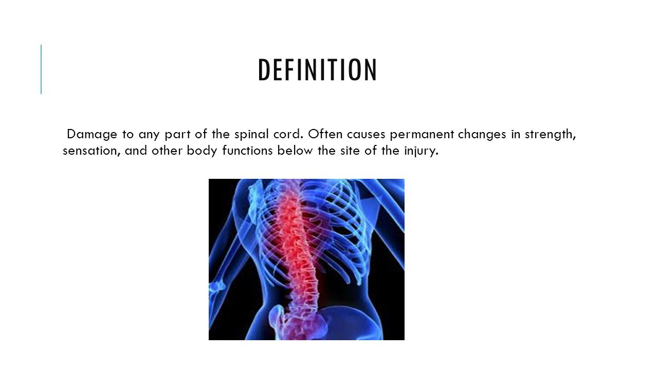 SPINAL PARALYSIS By Kim V. and Kiki H.. DEFINITION Damage to any ...