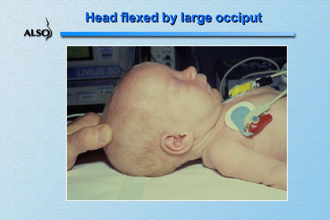 Head flexed by large occiput