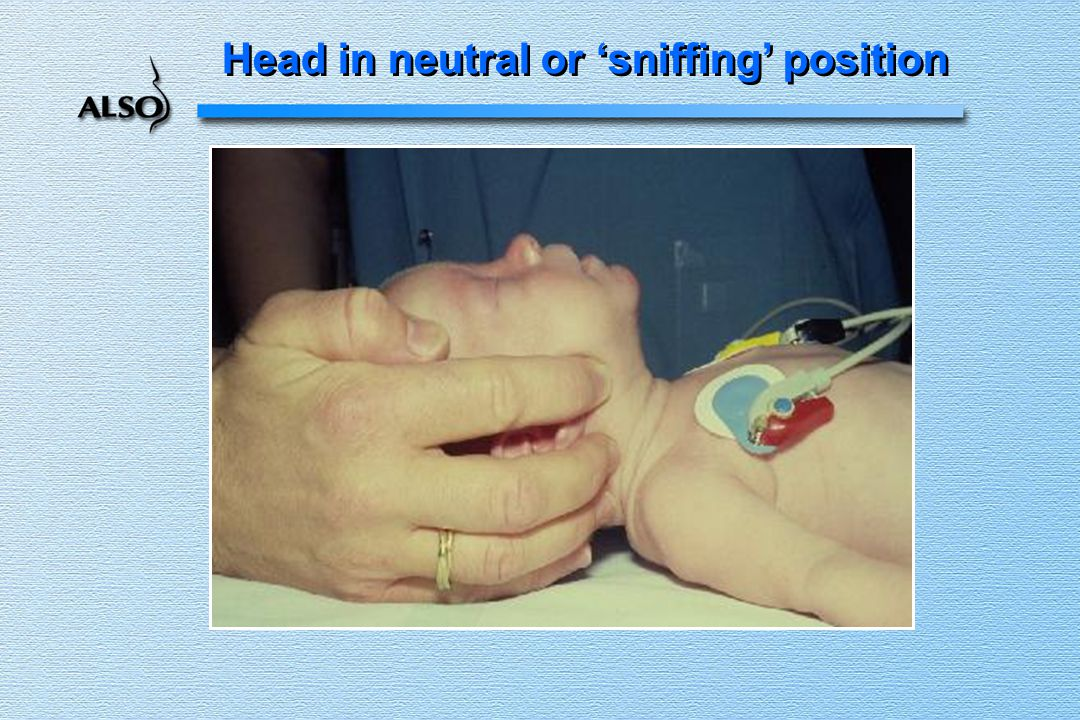 Head in neutral or 'sniffing' position