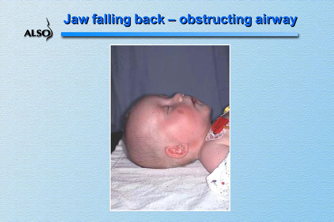 Jaw falling back – obstructing airway
