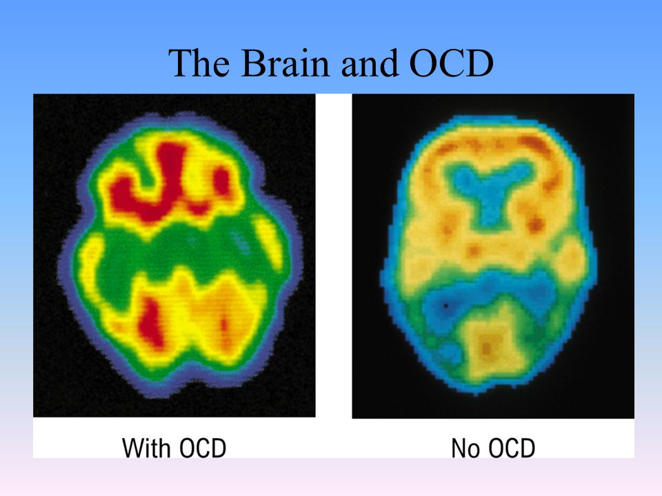 The Brain and OCD
