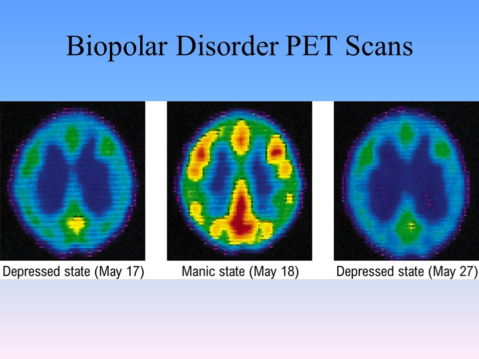 Biopolar Disorder PET Scans