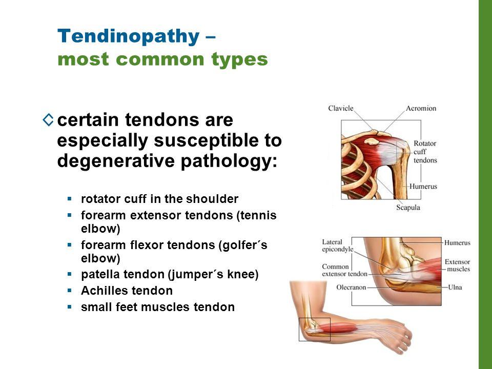 Various Physical Therapies In Tendinopathy Jakub Jenicek Ppt Download