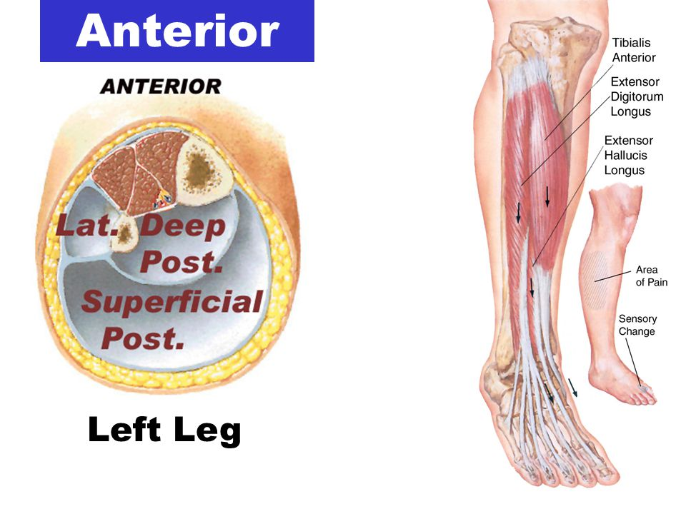 Leg Problems : Outline Gross Anatomy Achilles Problems Compartment ...