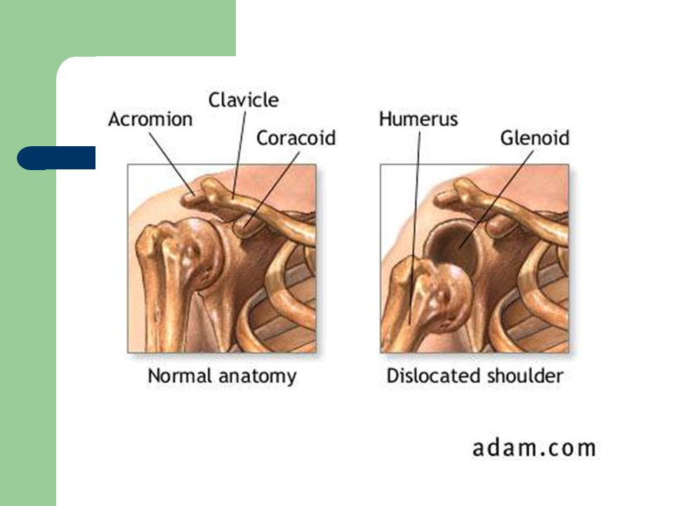 UPPER EXTREMITY INJURIES - ppt video online download