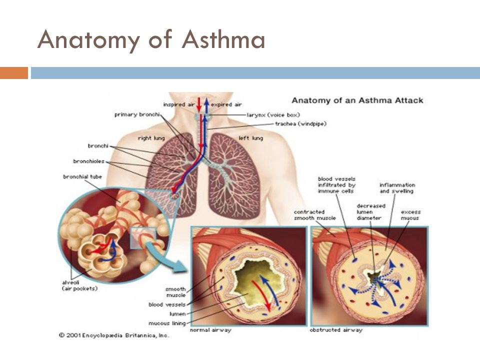 ASTHMA, ECZEMA Michael Widjaja 黄合乐. Outline  Preconceived ...