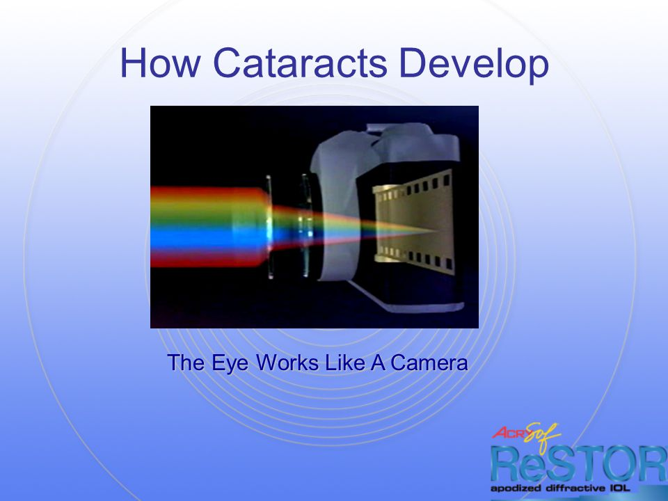 How Cataracts Develop The Eye Works Like A Camera