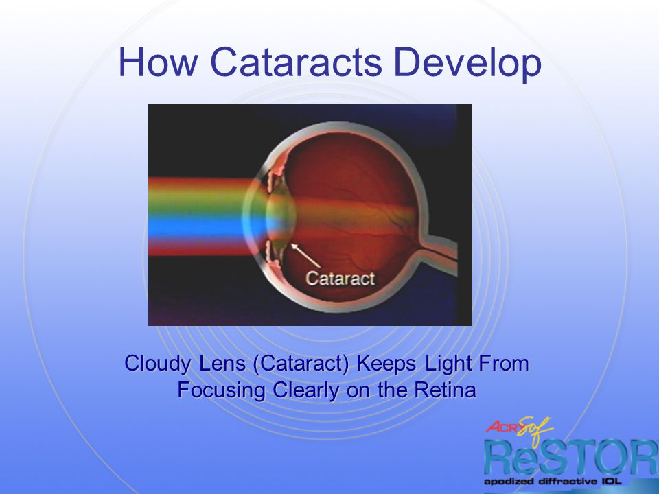 How Cataracts Develop Cloudy Lens (Cataract) Keeps Light From Focusing Clearly on the Retina