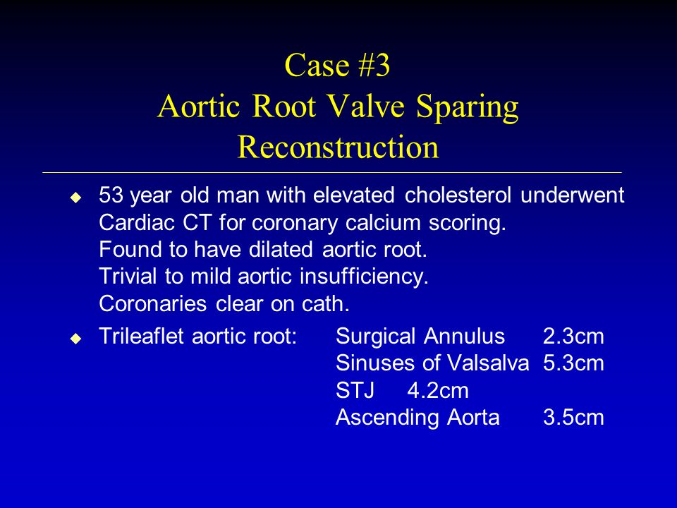 Case #3 Aortic Root Valve Sparing Reconstruction u u 53 year old man with elevated cholesterol underwent Cardiac CT for coronary calcium scoring.