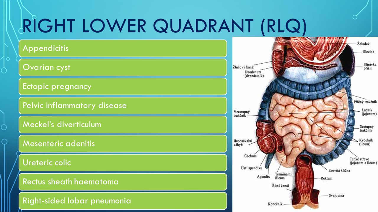 RIGHT LOWER QUADRANT (RLQ) AppendicitisOvarian cystEctopic pregnancyPelvic inflammatory diseaseMeckel's diverticulumMesenteric adenitisUreteric colicRectus sheath haematomaRight-sided lobar pneumonia
