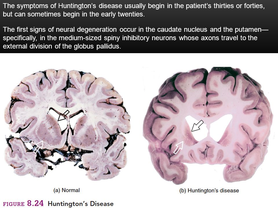 25 The symptoms of Huntington's disease usually begin in the patient's thirties or forties, but can sometimes begin in the early twenties.