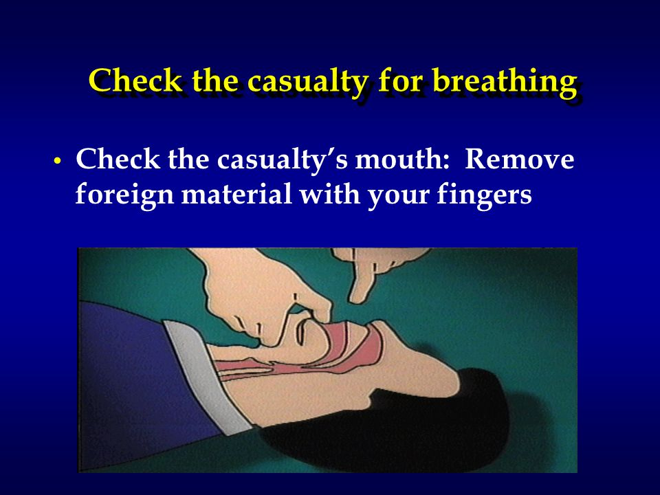 Check the casualty for breathing Check the casualty's mouth: Remove foreign material with your fingers