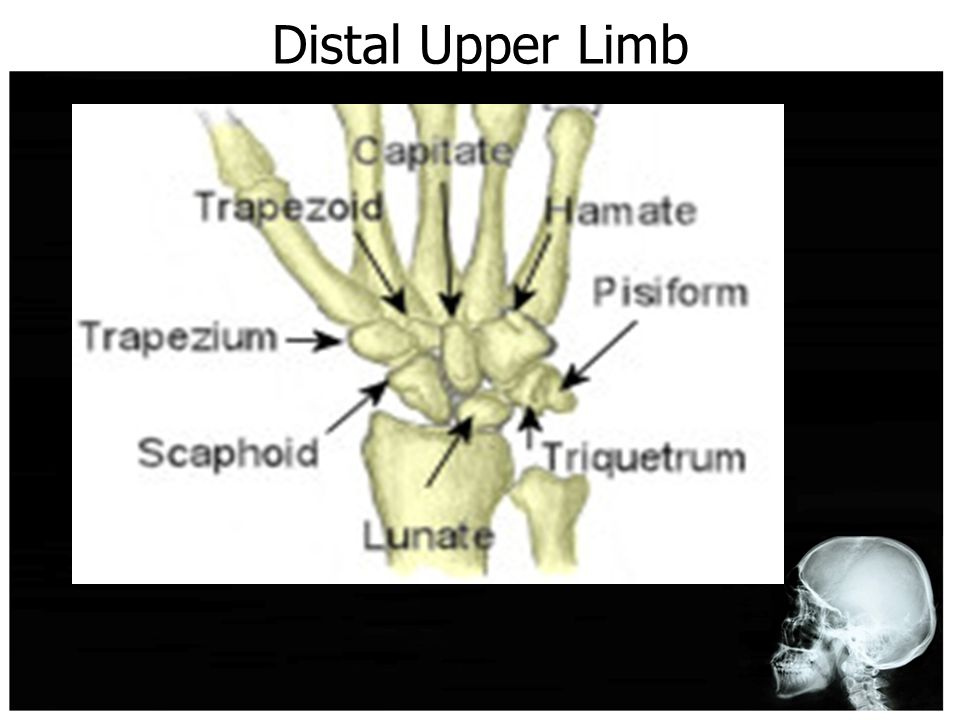 Distal Upper Limb