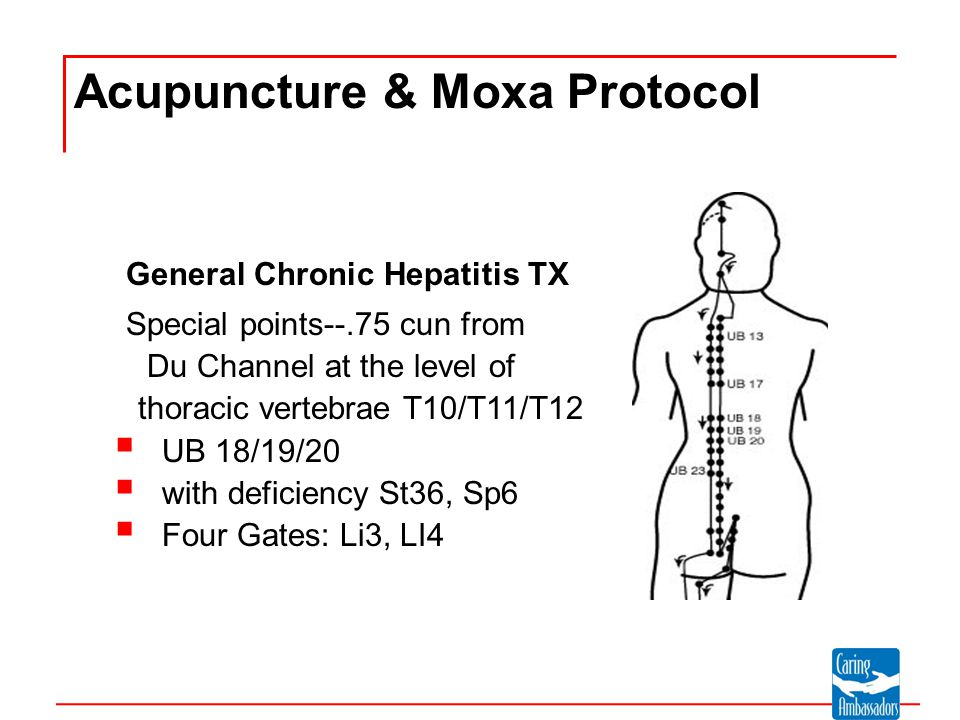 Hepatitis C Choices in Care Chinese Medicine and Hepatitis C Misha