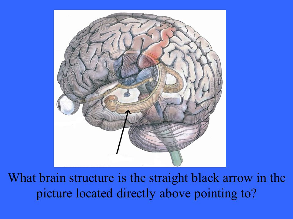 What brain structure is the straight black arrow in the picture located directly above pointing to