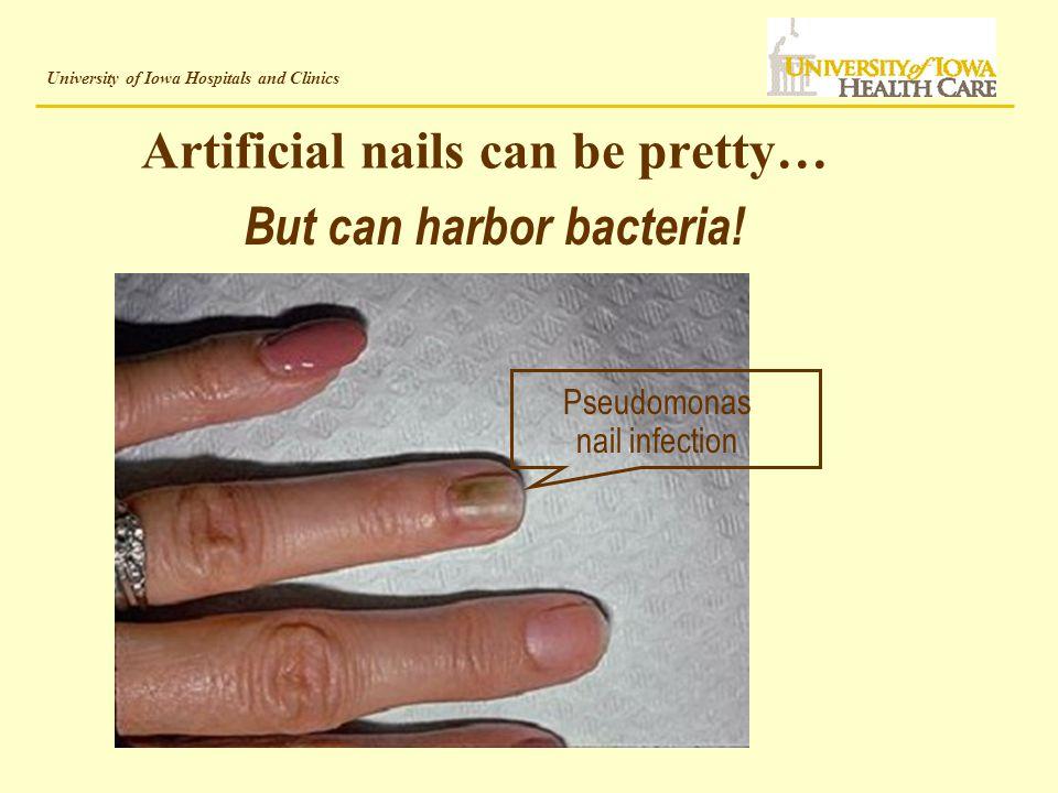University of Iowa Hospitals and Clinics Artificial Nails/Nail ...