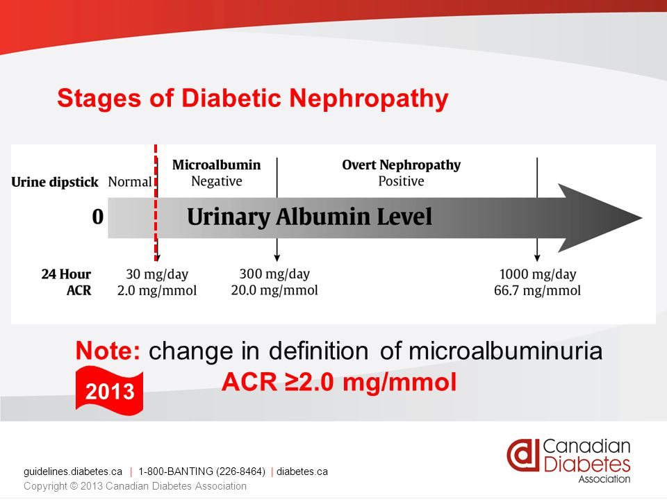 guidelines.diabetes.ca | BANTING ( ) | diabetes.ca Copyright © 2013 Canadian Diabetes Association Stages of Diabetic Nephropathy Note: change in definition of microalbuminuria ACR ≥2.0 mg/mmol 2013