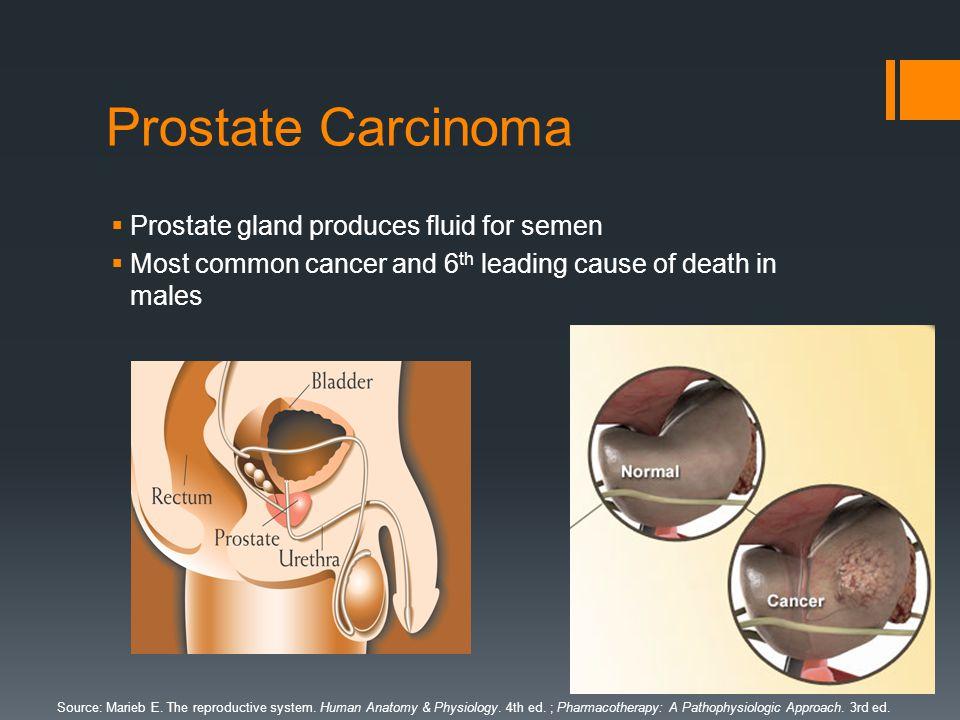 Carcinoma of the Prostate By: Ishan Parikh. Background on Cancer ...