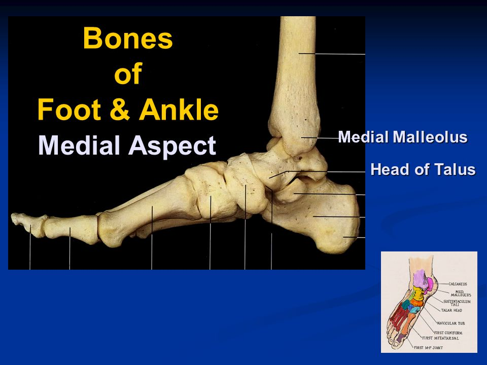 Ankle Injuries Ankle Sprains Ankle Sprains Single Most Common Injury
